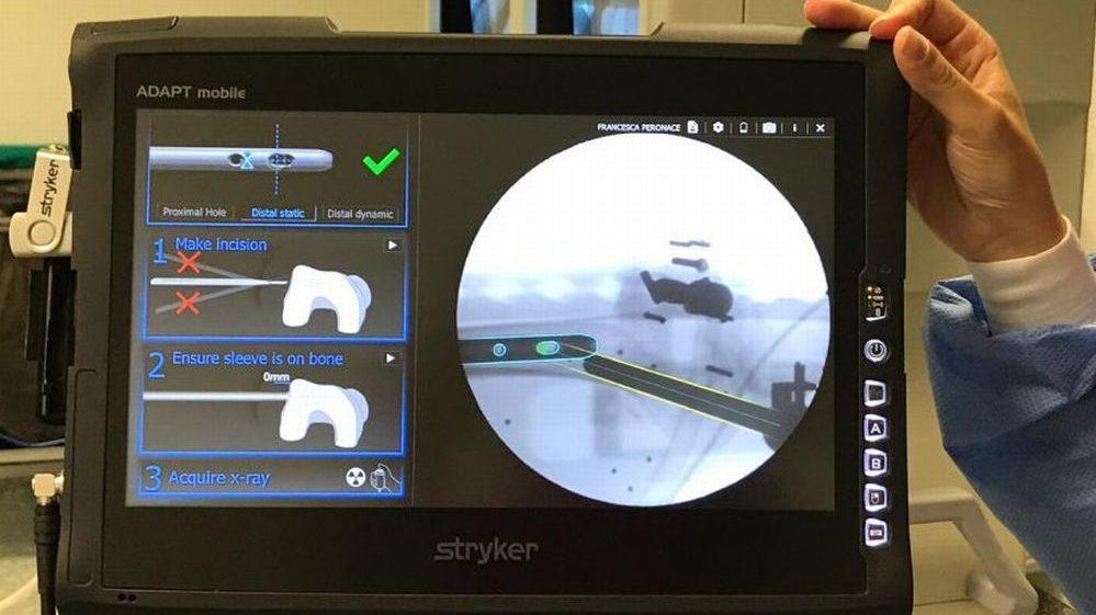 Frattura del femore: nuova tecnologia in Ortopedia al Santo Spirito di Casale Monferrato